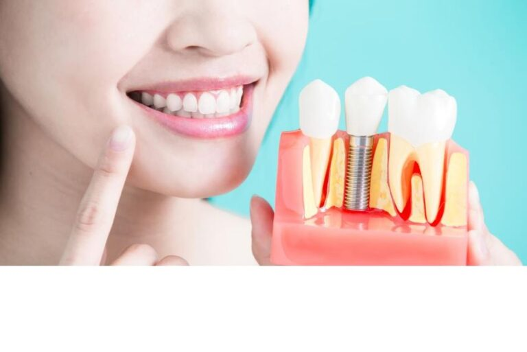 Why Should You Consider Getting Dental Implants?